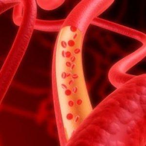 Circulation sanguine - stress oxydatif
